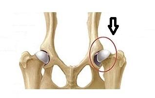 displasia dell'anca - articolo zuccacometa